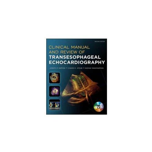 Clinical Manual and Review of Transesophageal Echocardiography, Second Edition (9780071638074)