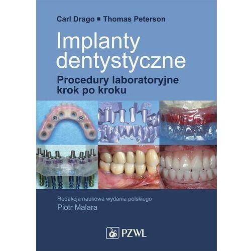 Implanty dentystyczne. Procedury laboratoryjne krok po kroku - Carl Drago - ebook