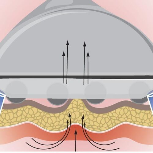 Elite base line masaż endermologiczny ultradźwięki
