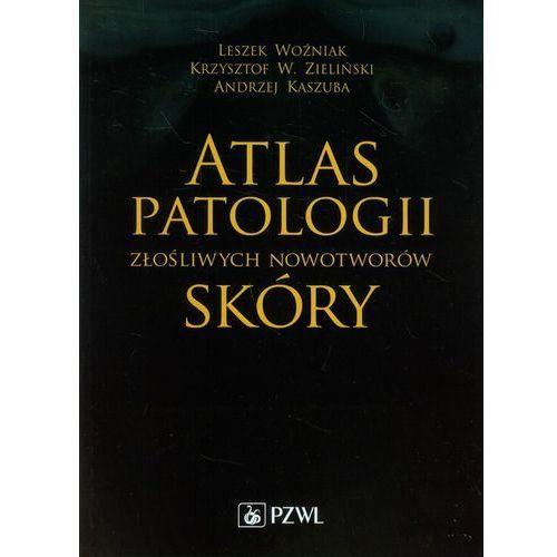 Atlas patologii złośliwych nowotworów skóry, PZWL