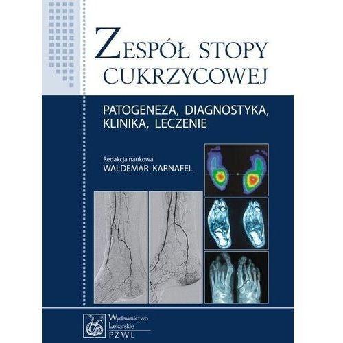 Zespół stopy cukrzycowej - waldemar karnafel (red.)