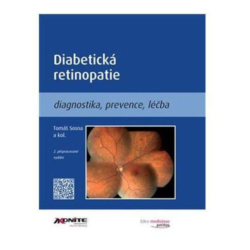 Diabetická retinopatie Eva Doležalová