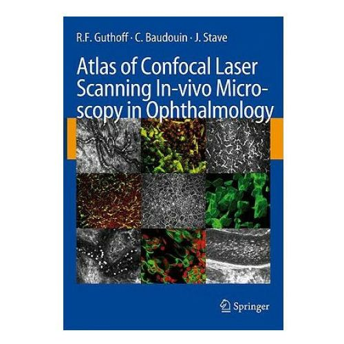 Atlas of Confocal Laser Scanning In-vivo Microscopy in Ophthalmology (9783540327059)