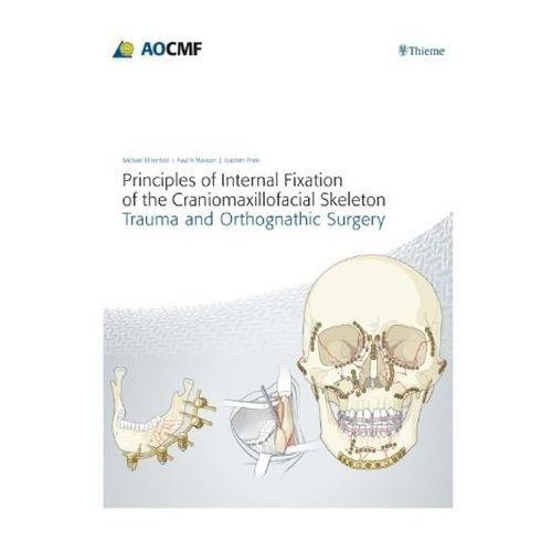 Principles of Internal Fixation of the Craniomaxillofacial Skeleton, Thieme Verlag