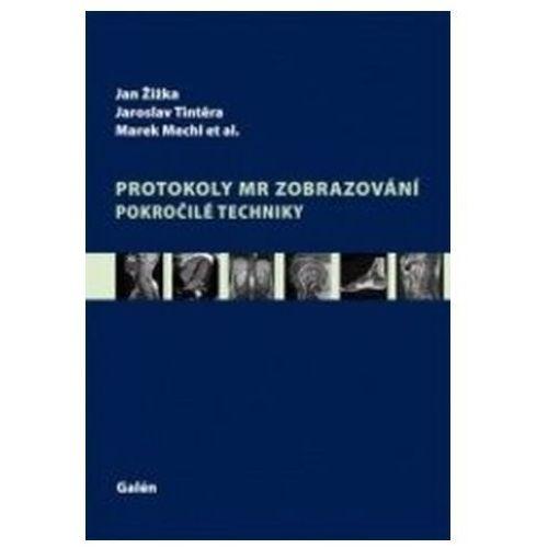 Protokoly MR zobrazování Eva Doležalová, kol.