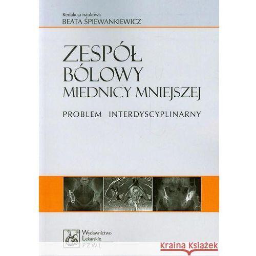 Zespół bólowy miednicy mniejszej, Beata Śpiewankiewicz