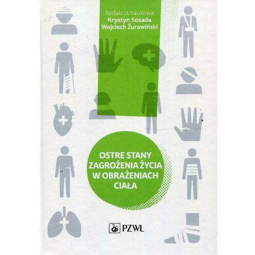 Ostre stany zagrożenia życia w obrażeniach ciała - No author - ebook